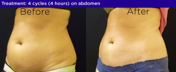 coolsculpting before and after chester springs pa Bella Medspa