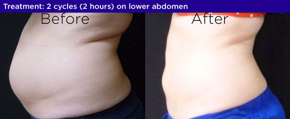coolsculpting before and after bucks county pa Bella Medspa